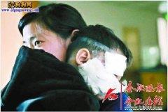 合肥1岁男童被狗扑咬面部缝100多