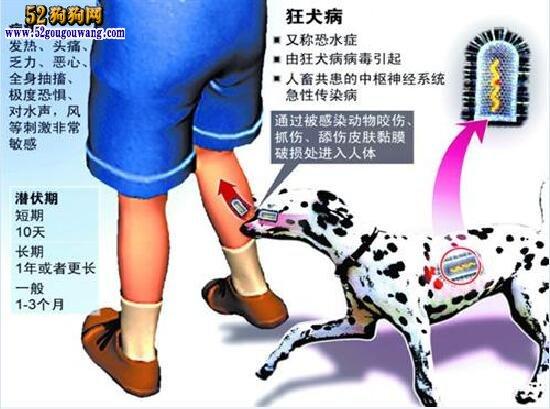 救宠物狗被咬伤的保安还是走了! 狂犬病再次给我们养狗人敲响警钟!