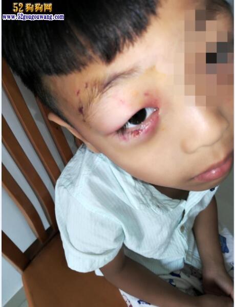 6岁男孩被狗咬患狂犬病13天离世!难道又是假疫苗!