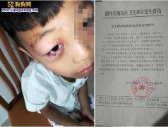 6岁男孩被狗咬患狂犬病13天离世