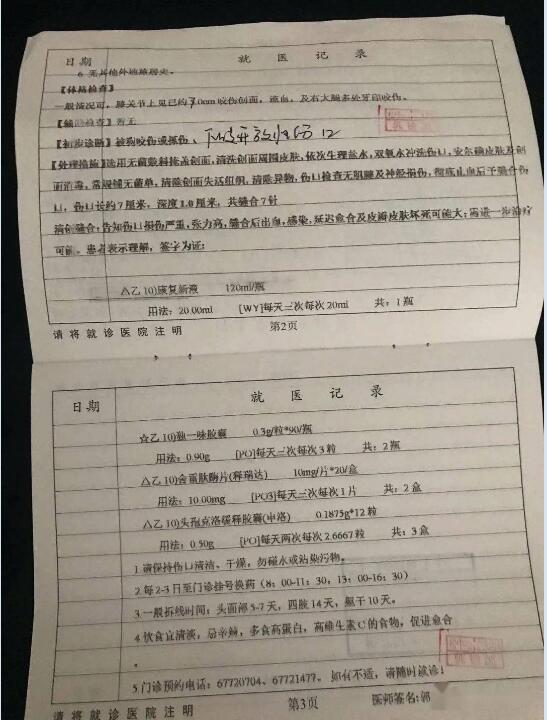 上海母亲替6岁女儿挡烈犬被撕咬一分多钟!