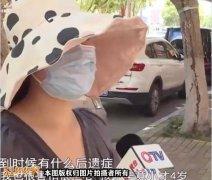 青岛4岁男童被狗咬伤!狗