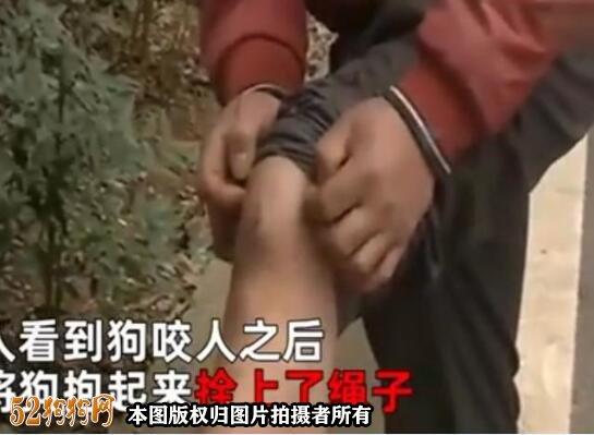 武汉男子被宠物狗咬伤,狗主人说:狗子是畜生后骑车逃走!